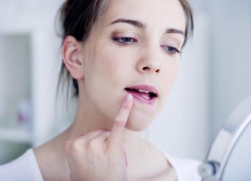 Аллергия на губах: причины, симптомы, лечение хейлита