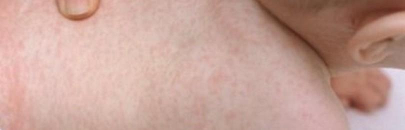 Сыпь на животе и спине у ребенка: что делать, если появились высыпания на теле