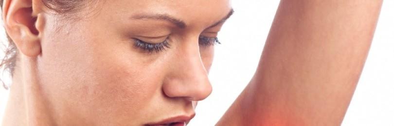 Красные пятна под мышками: причины раздражения кожи у детей и взрослых