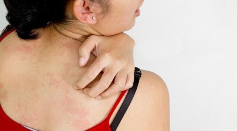 Острая крапивница у детей и взрослых: причины и лечение волдырей при аллергии