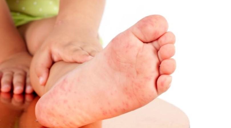 Аллергия на ногах у ребенка: как вылечить сыпь и красные пятна на коже