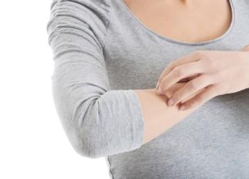 Аллергический дерматит: симптомы и лечение у взрослых и детей, фото