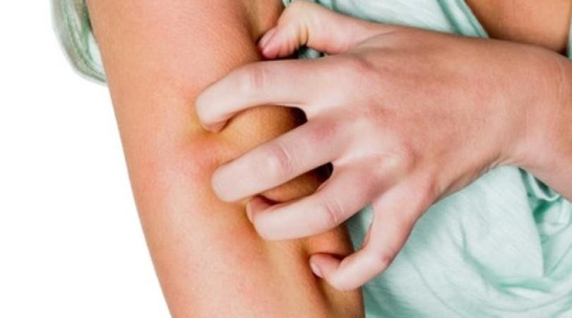 Нейродермит у взрослых и детей: симптомы и лечение, причины возникновения, фото