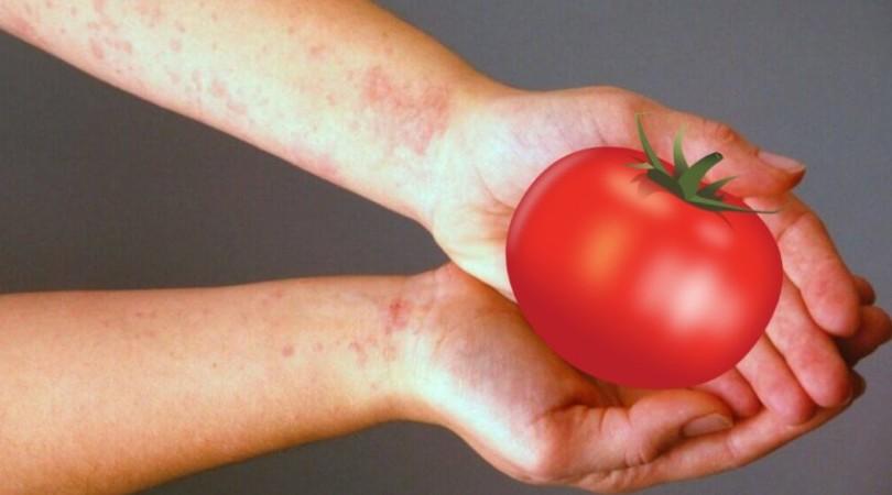 Аллергия на помидоры – как распознать и что делать, если появилась аллергия?