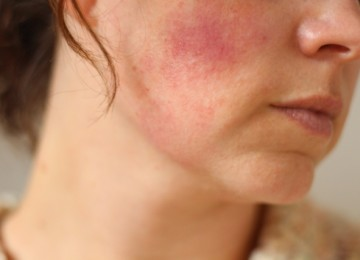 Красные пятна на теле: причины и лечение бляшек на коже