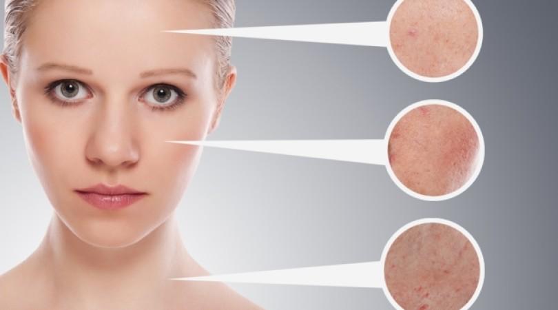 Высыпания на лице у взрослого: от чего на коже может появиться мелкая красная сыпь