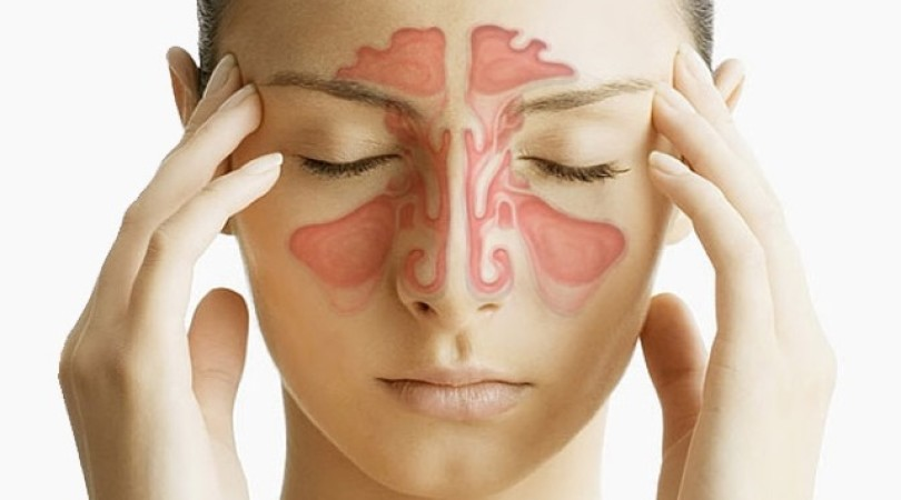 Острый ринит у детей и взрослых: МКБ-10, лечение, симптомы