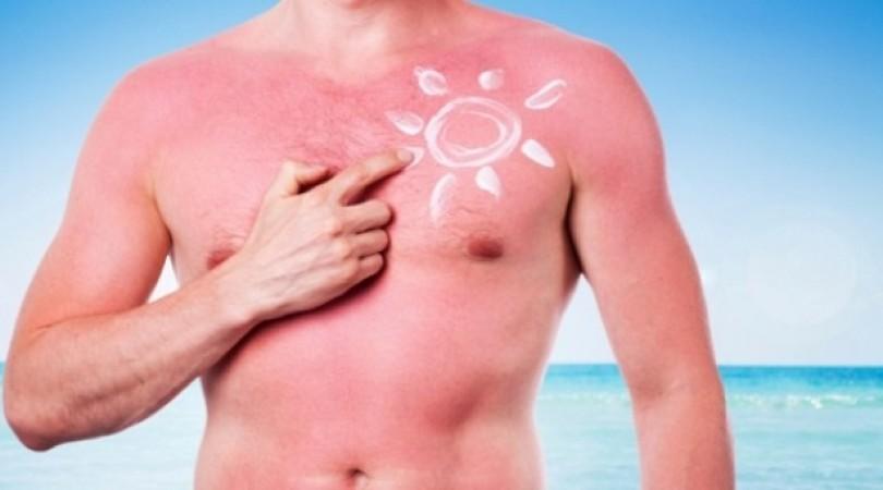 Аллергия на солнце: симптомы, лечение, фото