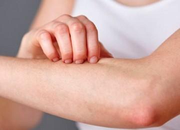Псориаз: причины возникновения и лечение кожного заболевания у детей и взрослых