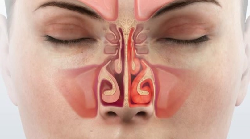 Хронический ринит: симптомы и лечение насморка у взрослых и детей