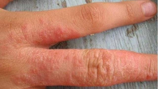 Сыпь на пальцах