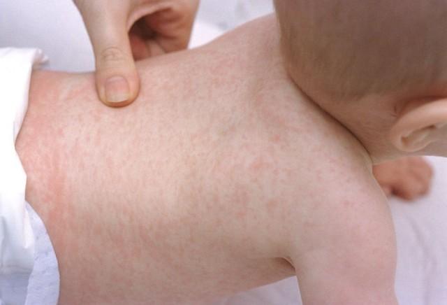 Сыпь на спине грудничка
