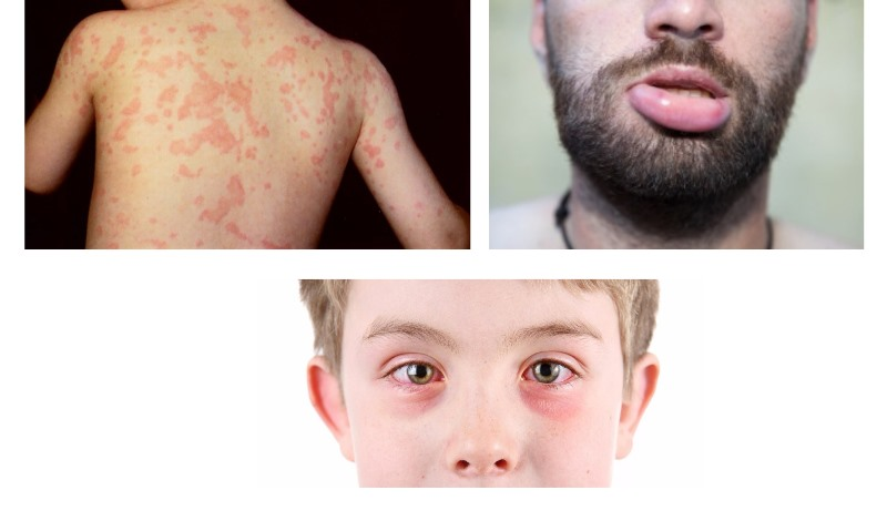 Аллергия на цикорий