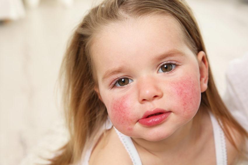 Аллергия на гранат у ребенка