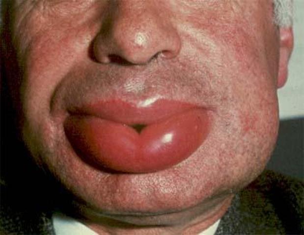 Отекшие губы