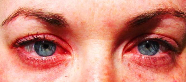 Как вылечить аллергический зуд