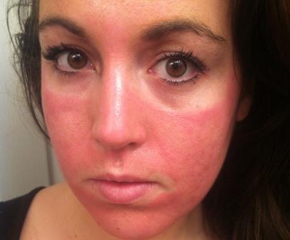 Аллергия на крем для лица симптомы