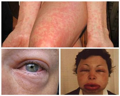 Симптомы кофейной аллергии