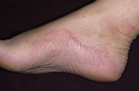 как выглядит дерматит на ногах фото