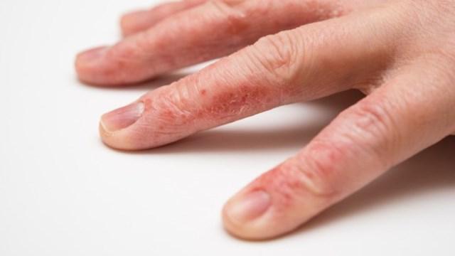 Дерматит на пальцах