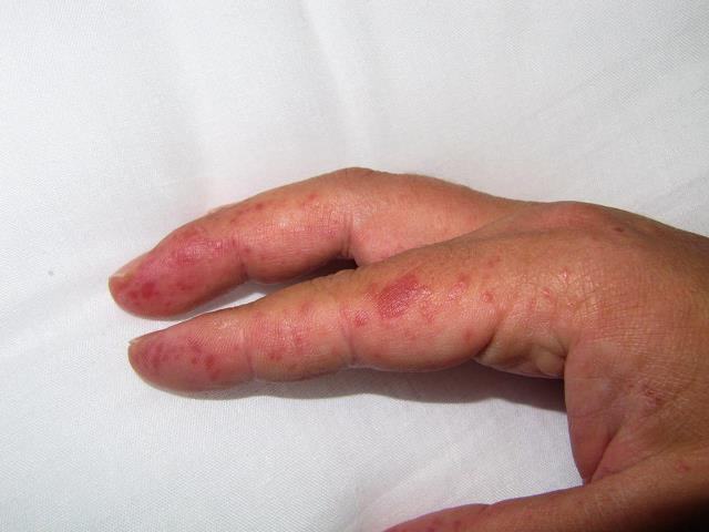 Может ли быть аллергия на гель лак на руках