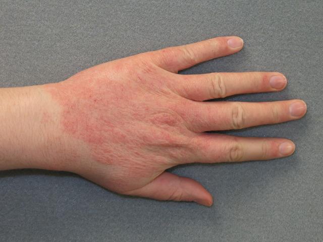 Быстро снять аллергические сыпи