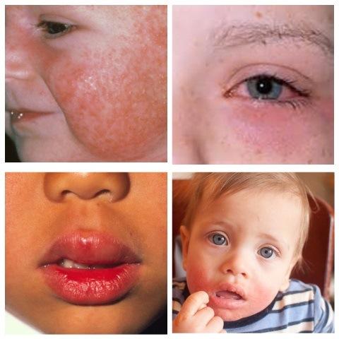 Можно ли есть свеклу при аллергии
