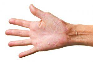 Сыпь при аллергии на ладошках
