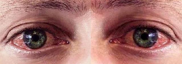 Аллергия на веках глаз на косметику