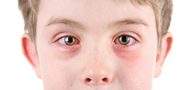 Пищевая аллергия на глазах