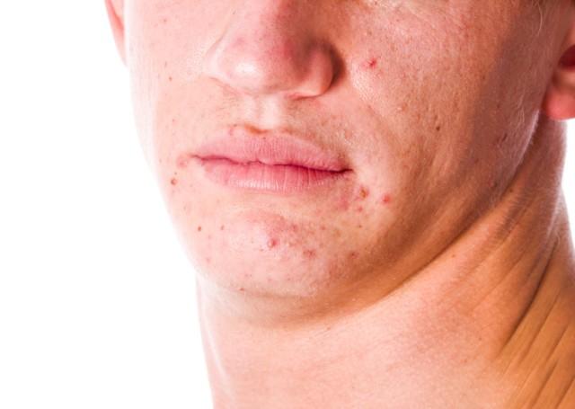 аллергия на нервной почве симптомы фото