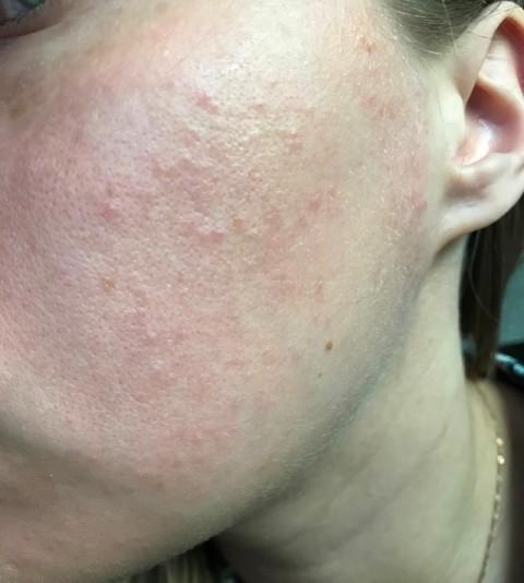Мелкая сыпь на лице у взрослого фото thumbnail