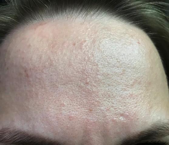 Мелкая сыпь на лице у взрослого фото
