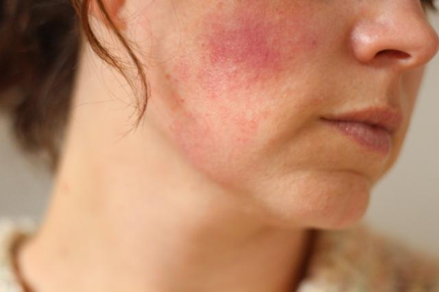 Нервная аллергия: лечение крапивницы и сыпи от стресса