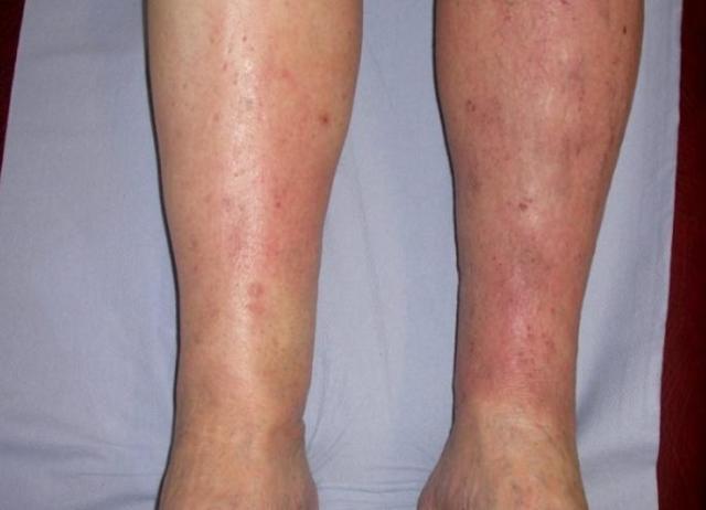 аллергический дерматит на ноге фото
