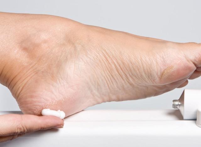 дерматит фото у взрослых на ногах