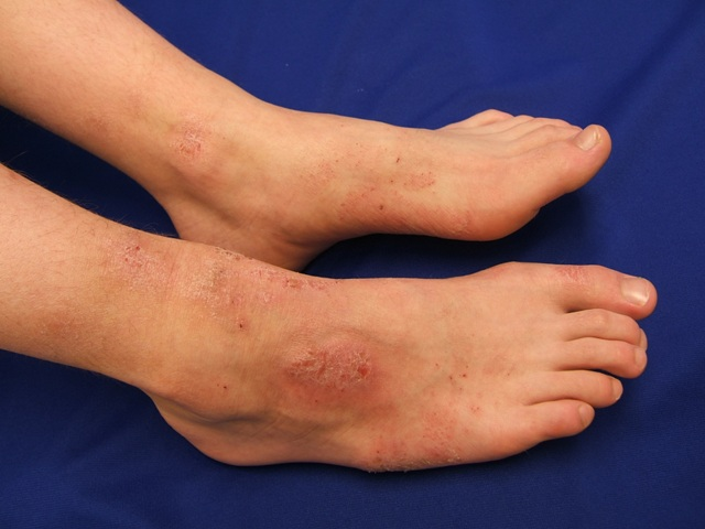 сухой дерматит на ногах лечение