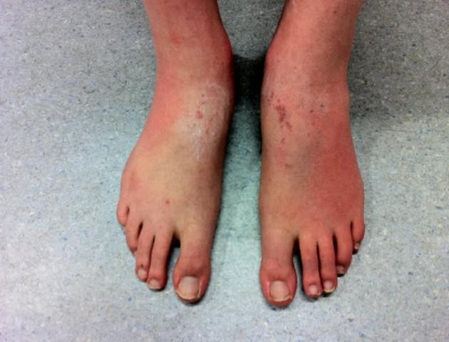 атопический дерматит на ногах фото