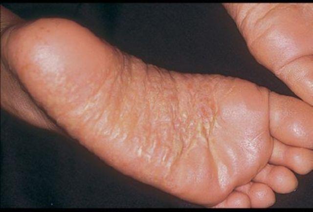 дерматит на ступнях