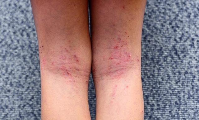 дерматит на ноге