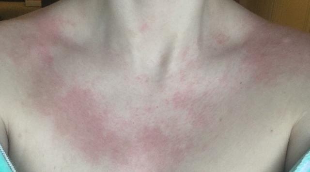 на груди красное пятно