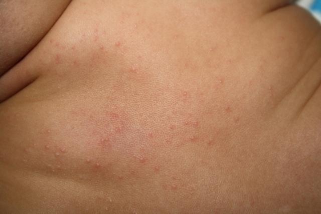 мелкая сыпь на животе и спине