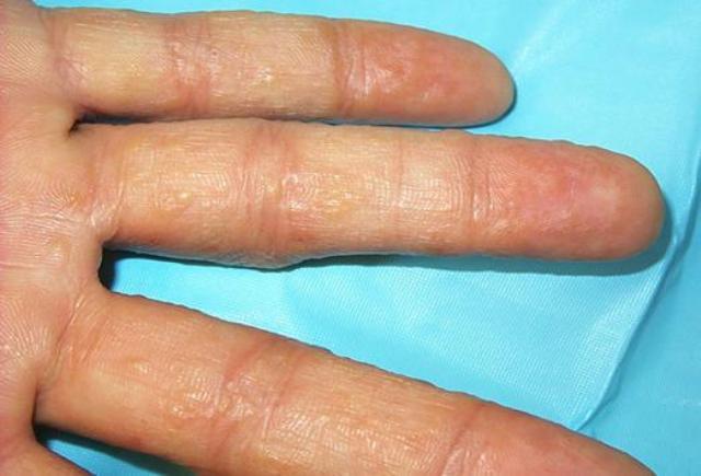 мелкие пузырьки на пальцах рук