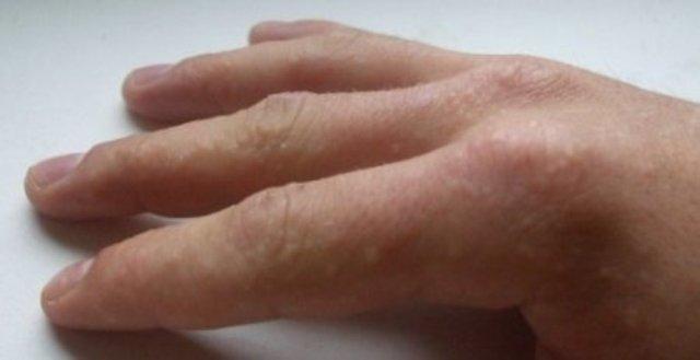 маленькие волдыри на пальцах рук