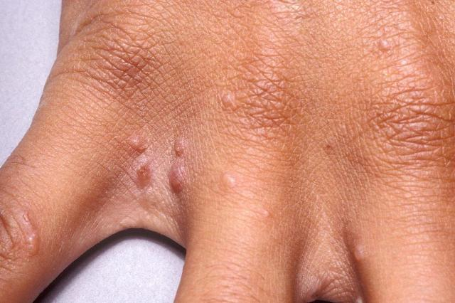 пузыри на пальцах рук