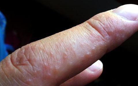 пузырьки на пальцах рук чешутся