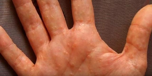 пузырьки на пальцах